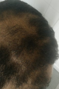 Traction Alopecia The Hair Pulling Question