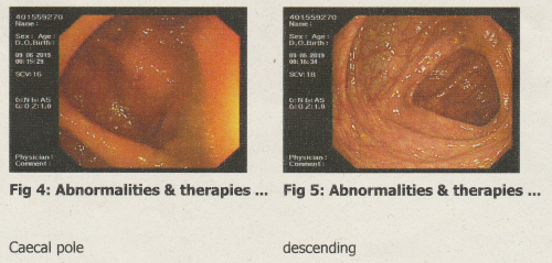Two images taken during my medical exam of the inside my body